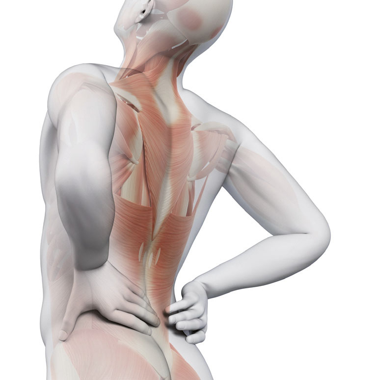 Mann mit akuten Rückenschmerzen – Schematische Darstellung der Rückenmuskulatur. Paraxis Dr. med Angela Vogel hilft gegen Rückenschmerzen.